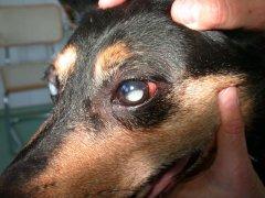 Linsenluxation in hintere Augenkammer