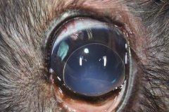 Linsenluxation in die vordere Augenkammer