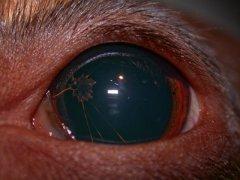 Persistierende Pupillarmembran